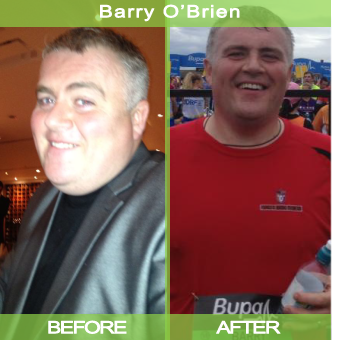 Barry-Obrien_before-after-shot_00000