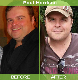 Paul-Harrison_before-after-shot_00000